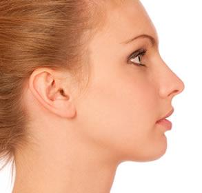 Cirugía de nariz (Rinoplastía)